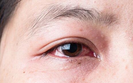phòng bệnh bệnh đau mắt đỏ