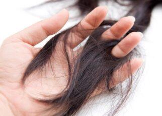 Tình trạng rụng tóc và cách khắc phục